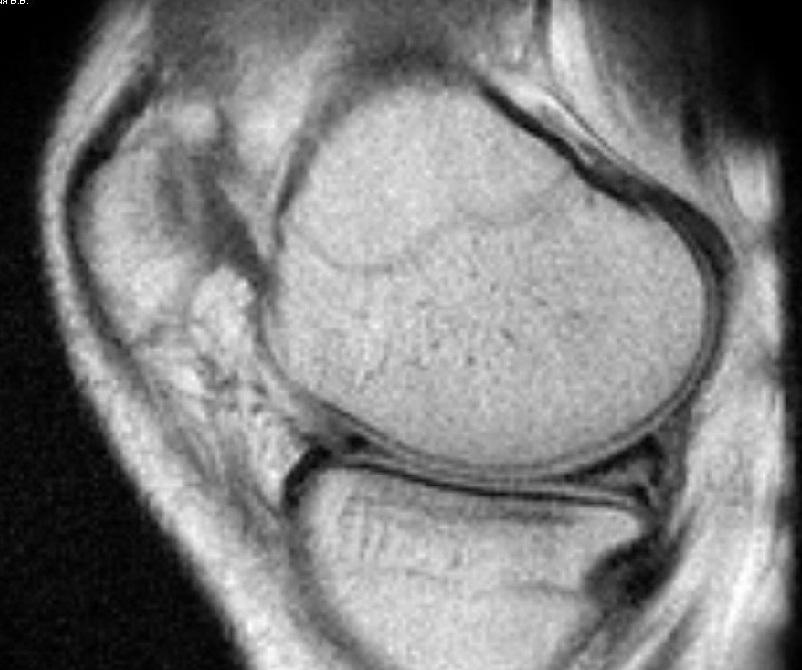 повреждение менисков коленного сустава на мрт